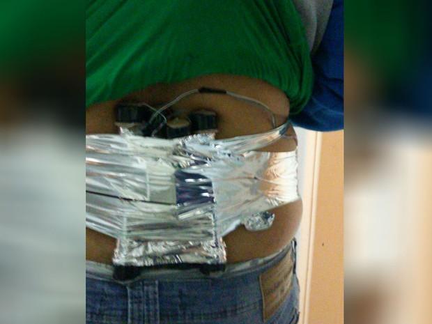 Criminosos prenderam artefato no corpo de uma pessoa durante assalto (Foto: Arquivo Pessoal)