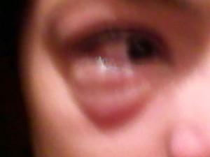 Pálpebra da adolescente ficou inchada pela alergia (Foto: Ana Lucia Campos)