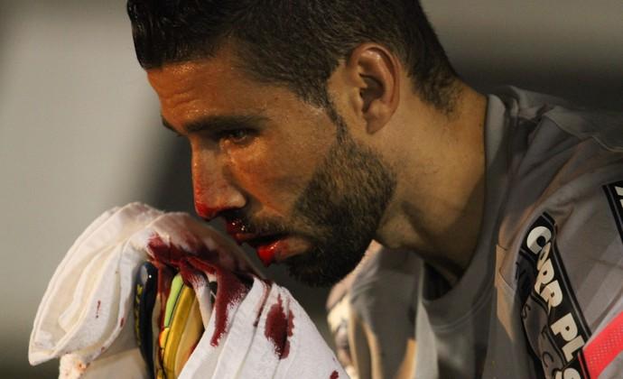 Vanderlei goleiro, santos sangue (Foto: Luciano Claudino / Ag. Estado)