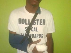 Tiago lamenta não ter conseguido o reumplante após achar parte do dedo no lixo do hospital (Foto: Thiago Menezes/Arquivo pessoal)