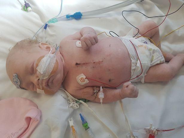 Lacey-Janet  precisou passar por uma grande cirurgia em suas duas primeiras semanas de vida (Foto: hull daily mail)