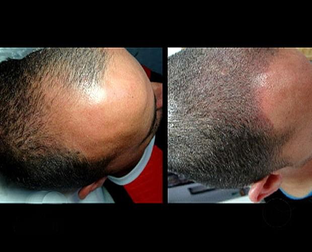 Máscaras de cabelo com ácido nicotinic em ampolas