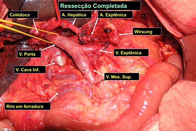 Operação (Foto: Alfredo Guarischi)