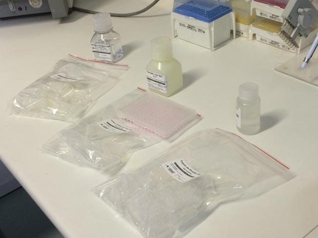 Kit NAT permitirá realizar a identificação simultânea do material genético dos três vírus (Foto: Fernanda Rouvenat / G1)
