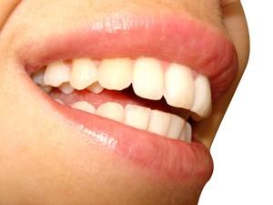 Bem Estar Clareador Dental So Podera Ser Vendido Com Receita De