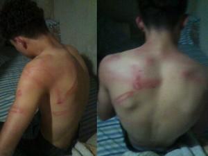 Pai de adolescente afirma que ele foi agredido por policiais militares em escola (Foto: G1)
