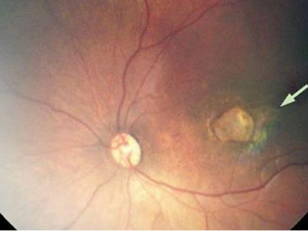Foto mostra caso grave de atrofia de retina, que causa perda da visão, em bebê com microcefalia  (Foto: The Lancet)