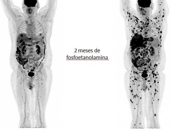 Exame de paciente antes e depois de usar a fosfoetanolamina. Os tumores no fígado, à esquerda, espalharam-se por todo o corpo (Foto: Reprodução)