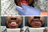 BLOG: Lutador tem dentes destruídos após joelhada no UFC; veja fotos
