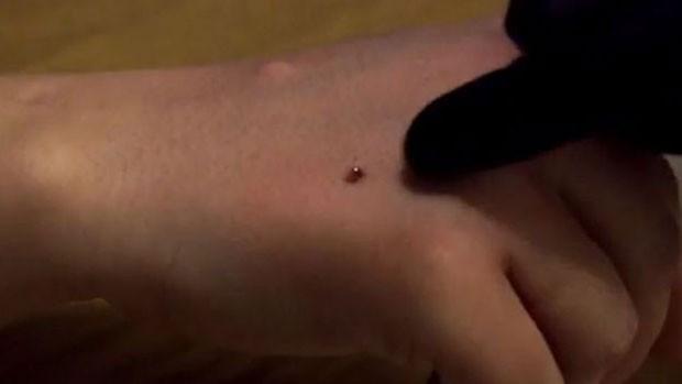 A BBC acompanhou uma das últimas atualizações que Lepht fez em um dos chips implantados em sua mão, um procedimento bem menos sangrento que os anteriores. (Foto: BBC)
