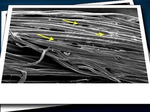 Fio de sutura desenvolvido pela Unicamp com células-tronco que acelera a cicatrização de feridas (Foto: Reprodução/ EPTV)