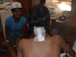 Bala perdida na nuca de garoto não deixou sequelas  (Foto: John Pacheco/G1)