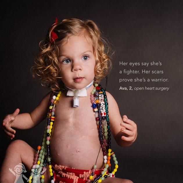 """""""Seus olhos dizem que ela é uma lutadora. Suas cicatrizes provam que ela é uma guerreira"""". Ava, 2 anos, cirurgia cardíaca (Foto: KATE T. PARKER/CHOA)"""