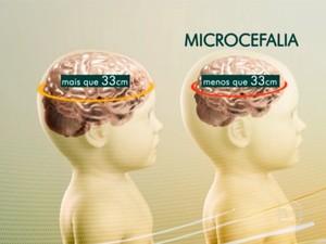 microcefalia jornal hoje (Foto: Tv Globo)
