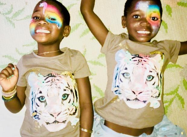 As gêmeas têm 5 anos  (Foto: reprodução/Instagram)