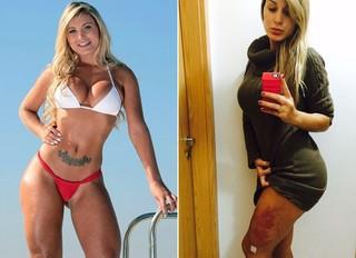 Antes e Depois - Próteses da perna de Andressa Urach (Foto: Divulgação)
