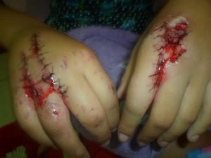 Thaís teve apenas ferimentos nas mãos. (Foto: Arquivo pessoal)