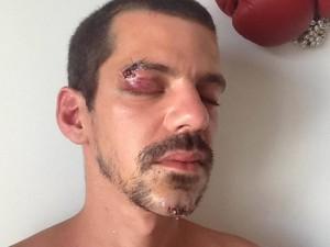 Ativista e artista Dudu Quintanilha, agredido no carnaval (Foto: Arquivo Pessoal)