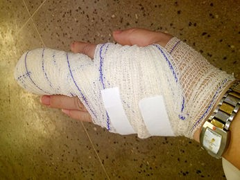 Professora teve fratura no dedo e corte; ela levou 12 pontos (Foto: Arquivo pessoal)