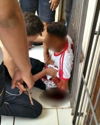 Aluno foi atingido por colega com golpes de tesoura dentro de escola na capital (Foto: Arquivo pessoal)