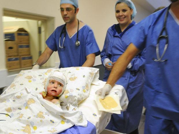 Isabella, de 3 anos de idade, teve cerca de 80% do corpo queimado (Foto: Antoine de Ras/AP Photo)