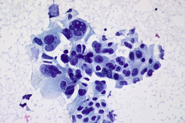 Células cancerígenas em destaque (Foto: Ed Uthman / Flickr)