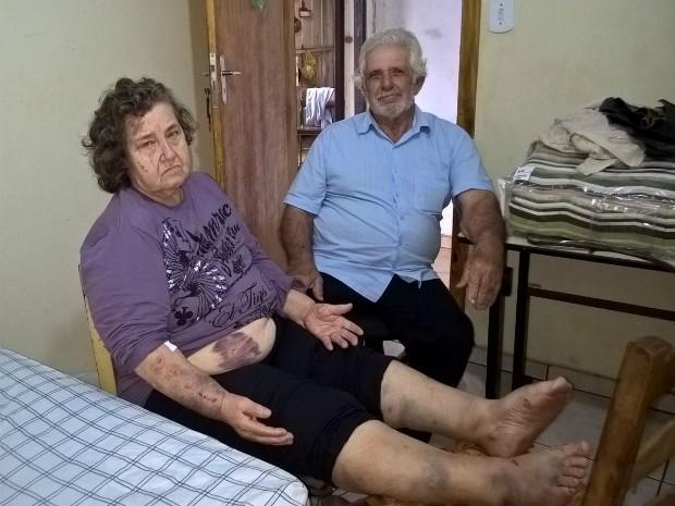 Izolete Soares, de 65 anos, ficou bastante ferida e deixou o hospital na terça (14); ela e o marido, o aposentado Antônio Soares, de 78 anos, tiveram a casa destruída pelo tornado (Foto: Josiane Soares Sai / Arquivo Pessoal)