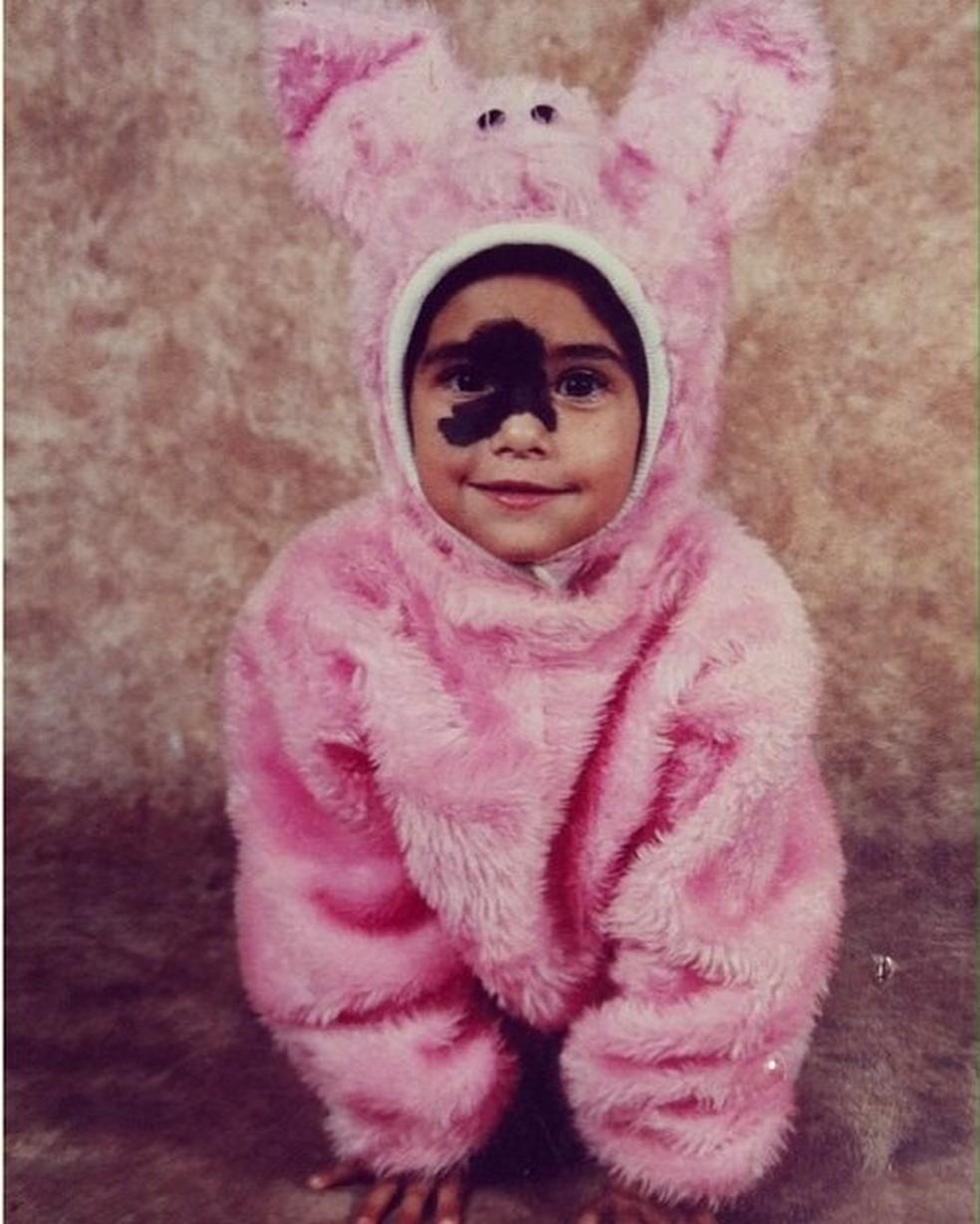 Quando criança Mariana chegou a realizar sessões para retirar a marca (Foto: Reprodução/Facebook)