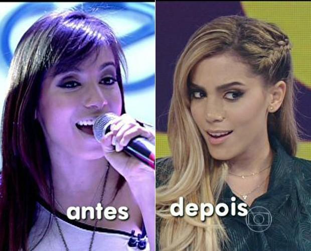 Anitta antes e depois da cirurgia! (Foto: Mais Você / TV Globo)