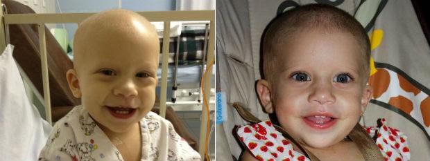 Emilie Adams já passou por cinco quimioterapias e há duas semanas fez uma cirurgia onde foram retirados dois tumores malignos (Foto: Arquivo Pessoal)