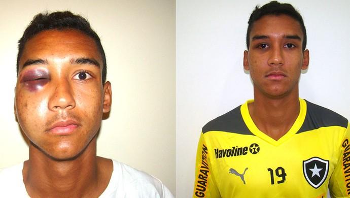 Verdini zagueiro Botafogo recuperação  fratura do osso zigomático (Foto: Divulgação])