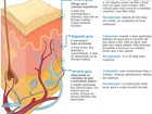 Mulher recebe 1º transplante de pele fabricada com as próprias células