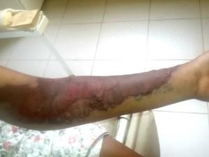Braço de jovem apresenta queimaduras após ficar internada na UTI em Cruzeiro do Sul  (Foto: Meury Gomes/ Arquivo pessoal )