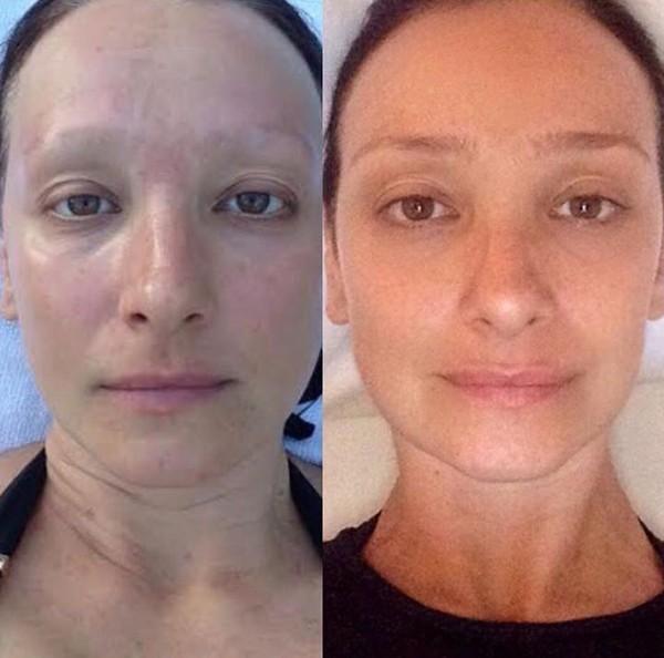 Sabrina Parlatore faz comparação de fotos um ano após finalizar tratamento de quimioterapia (Foto: Reprodução / Instagram)