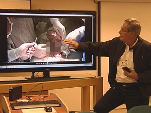 Cirurgião pediatra Humberto Liedtke explica como foi feita a cirurgia (Foto: Reprodução/ TV TEM)