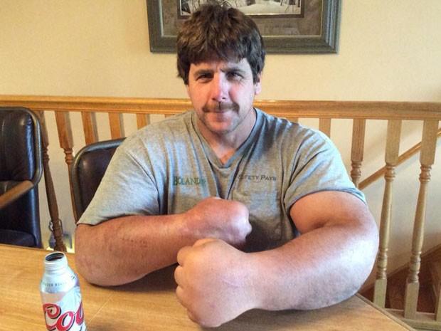 Médicos não conseguiram determinar porquê os braços do lutador Jeff Dabe cresceram de forma anormal (Foto: Reprodução/Facebook/Jeff Dabe)