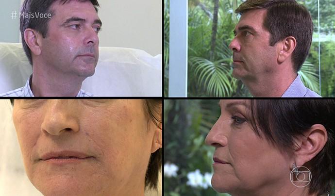 Antes e depois do tratamento no rosto (Foto: TV Globo)