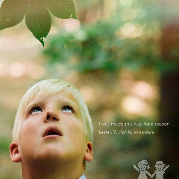 """""""Fui feito dessa maneira por uma razão"""". Lester, 7 anos, lábio leporino (Foto: KATE T. PARKER/CHOA)"""