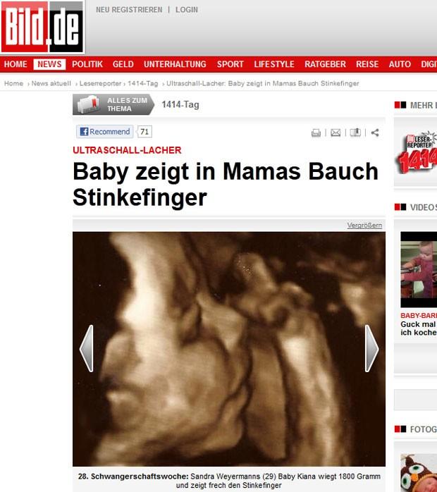 Em ultrassom, feto aparece mostrando o dedo médio. (Foto: Reprodução/Bild)