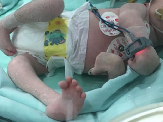Deformidade de membros e de articulações foi constatada em bebês com características típicas da síndrome congênita do zika (Foto: Reprodução/British Medical Journal)