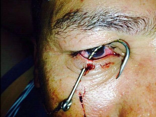 Homem fica com anzol preso no olho em um acidente durante uma pescaria (Foto: Julio Lossio / Arquivo Pessoal)
