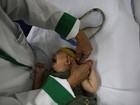 Microcefalia: casos confirmados chegam a 1.326, diz ministério