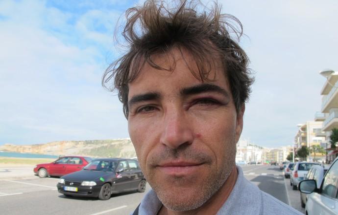 Carlos Burle Nazaré surfe olho roxo (Foto: David Abramvezt)