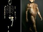 Lucy, a famosa australopithecus, provavelmente morreu em queda