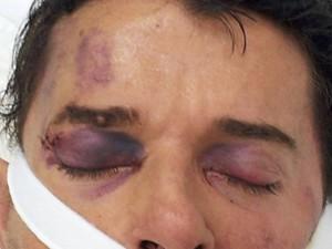 Luiz Antônio está internado em estado grave. (Foto: Rosalina Brito/Arquivo Pessoal)