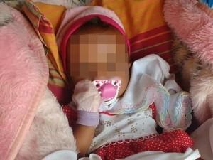 Bebê apresentava sinais de desidratação e desnutrição (Foto: Alinne Christina Soares/Arquivo Pessoal)