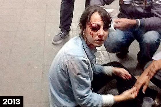 FERIMENTOS O conflito em Curitiba (acima) e a jornalista Giuliana Vallone ferida no olho. As cenas se repetem (Foto: Diego Zanchetta/Estadão Conteúdo)