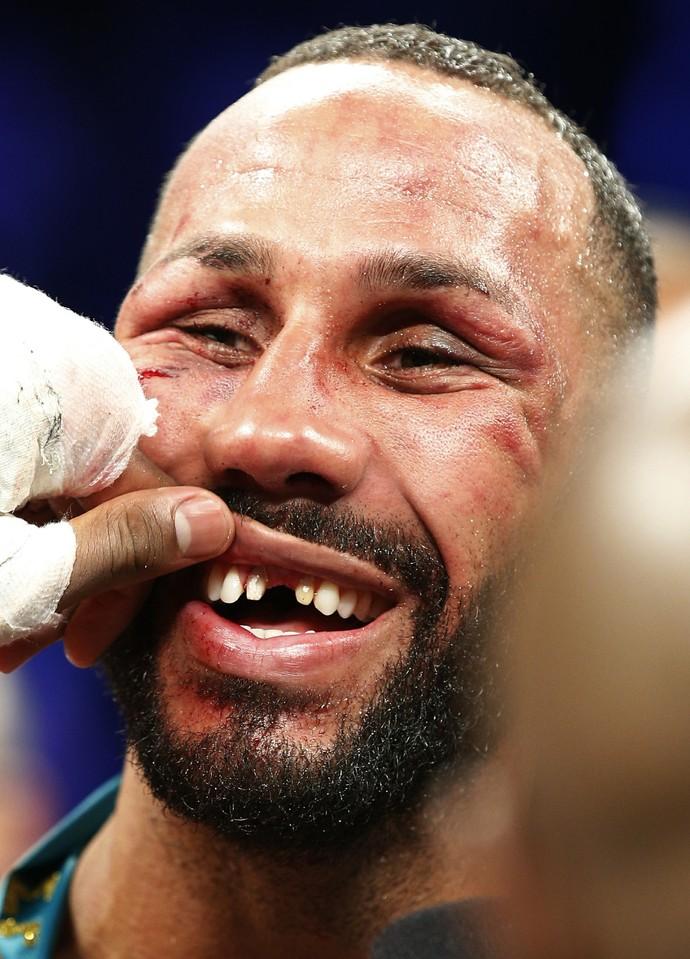 James DeGale perdeu um dos dentes de frente durante luta (Foto: Reuters)
