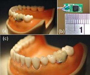 Sensor colocado em dente pode monitorar hábitos do usuário (Foto: Divulgação/National Taiwan University)