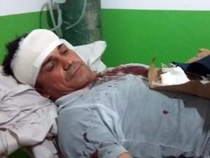 Vereador diz que foi agredido na noite de quinta-feira (Foto:  Fernando Cotrim / Arquivo Pessoal)
